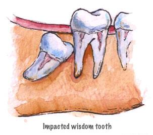 when teething 3 years molars uk